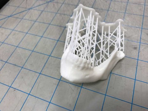 3D printed mandible from NIH