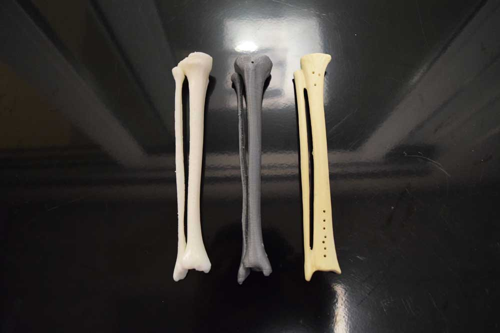 3D printed fibula and tibia