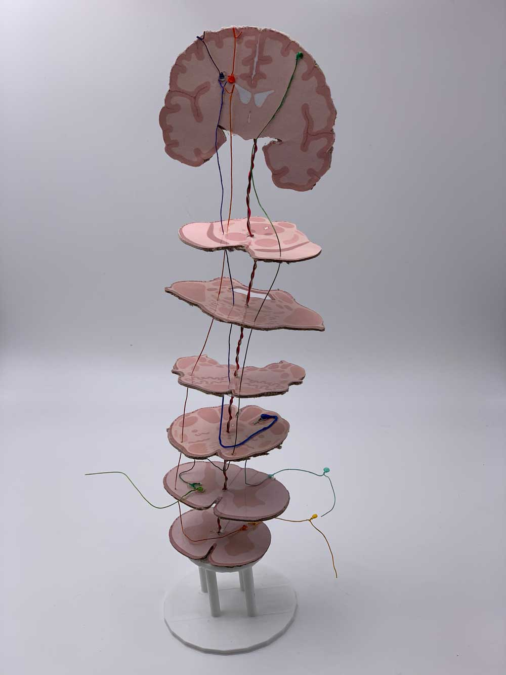 Picture of brain-stem model