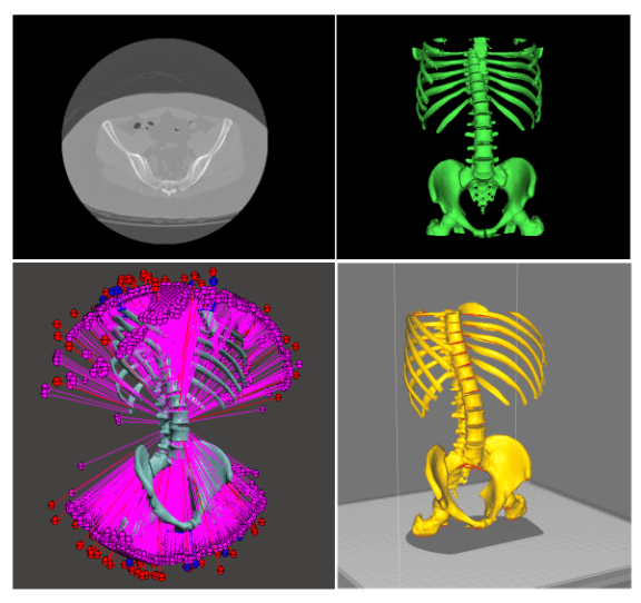 Image of CT scans to 3D models